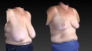 Breast Enhancement 3D Before and After-15
