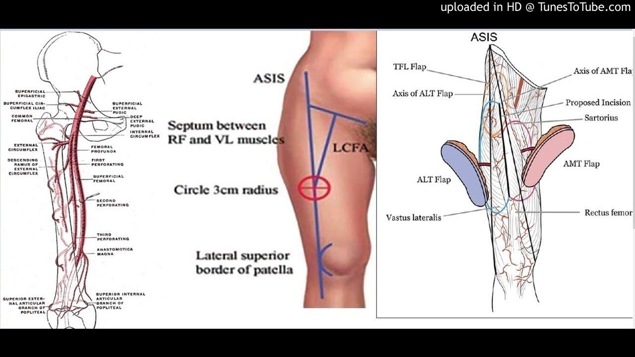 Perforator-to-perforator anastomosis: The free split anterolateral ...