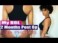 BBL Journey | 2 Months Post Op