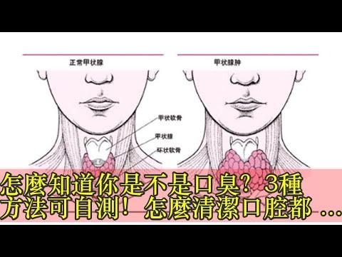 怎麼知道你是不是口臭?3種方法可自測!怎麼清潔口腔都口臭?或因扁桃體角化物如何判斷自己是否口臭?