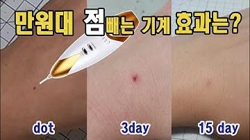 셀프 점빼기 (만원대 잡티지우개 사용후기)