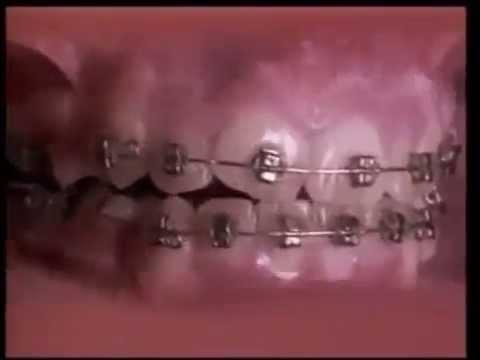 Что такое ортодонтия? -