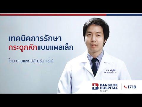 เทคนิคการรักษากระดูกหักแบบแผลเล็ก โดย นายแพทย์สัญชัย แซ่เบ้