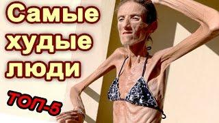 ТОП-5 Самые худые люди в мире.  Живой труп.  Анорексия