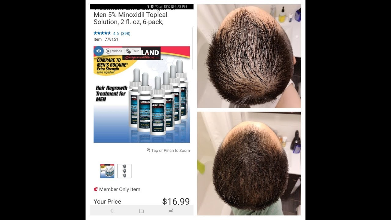 """Download 3 Month Journey & Review Using Kirkland's Minoxidil 5% """"""""This Stuff Works!!!"""""""""""