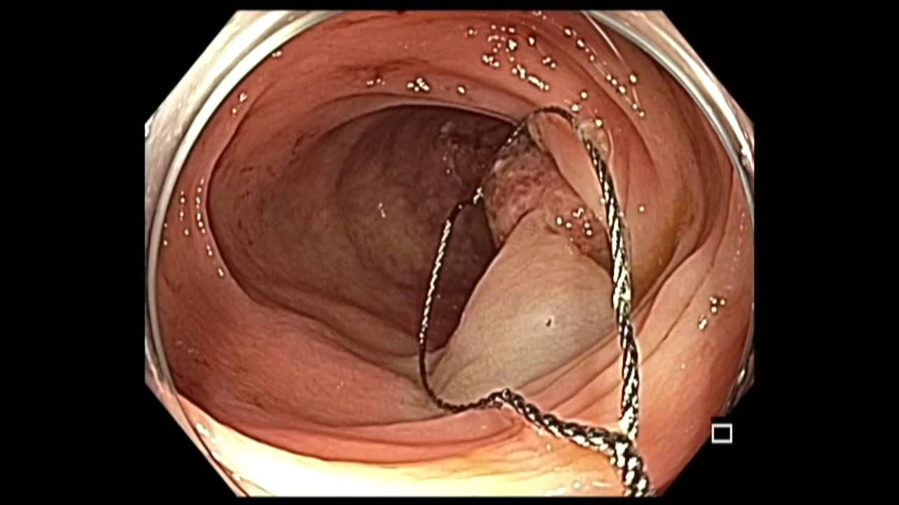 Colonoscopy Transverse Colon Inflammatory Polyp Youtube