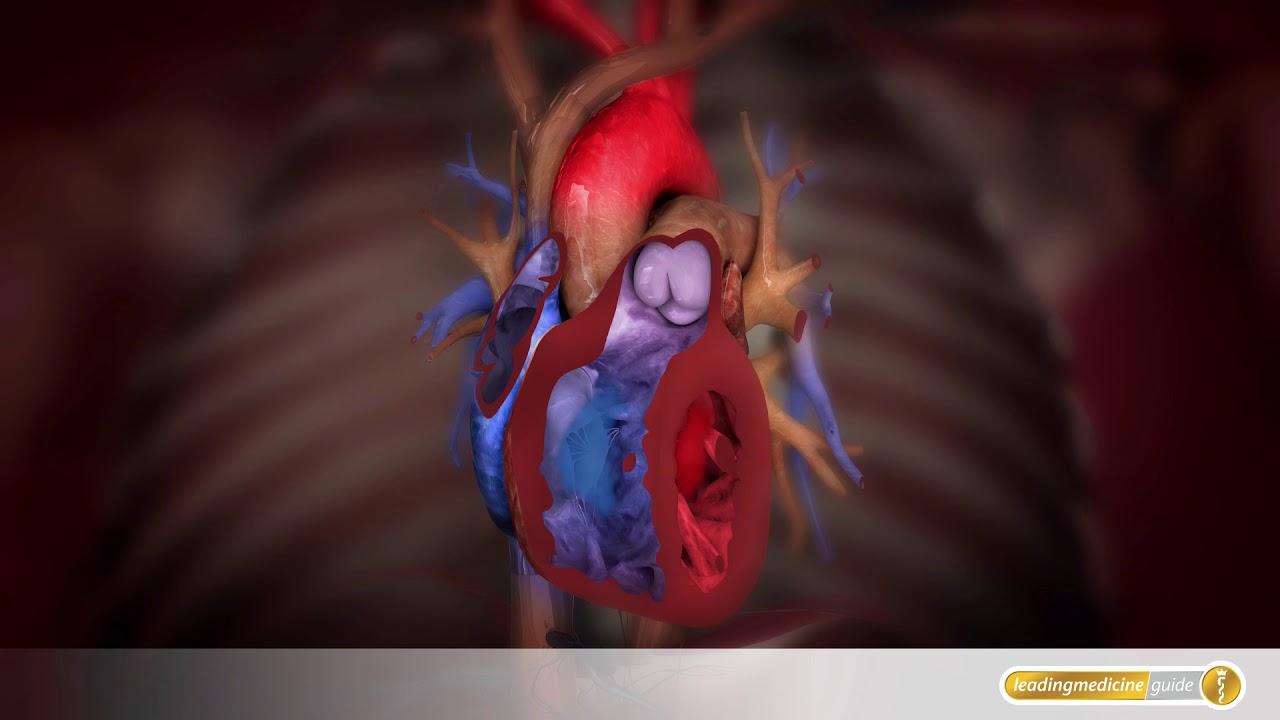 Anatomie: So funktionieren Herzschlag, Herzklappen und Blutstrom ...