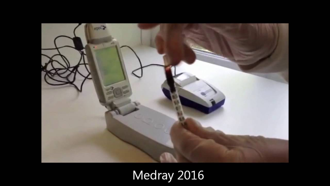 epoc Portable Blood Gas Electrolyte Analyser Demonstration video by Medray  Imaging Systems