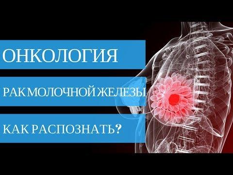 Рак молочной железы 2 стадия - фото 1