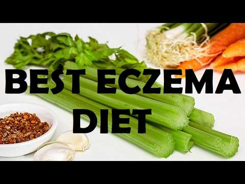 How To Cure Your Eczema Naturally | Best Eczema Diet