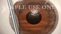Laser Eye Surgery (LASIK)