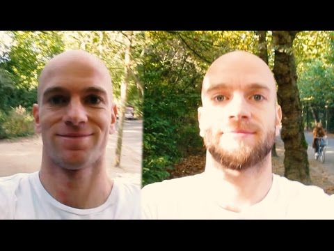 From Being Bald To Being Bearded: A Timelapse
