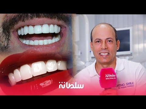 هوليود سمايل.. مميزاتها خصائصها وجودتها في المغرب مع دكتور المشاهير