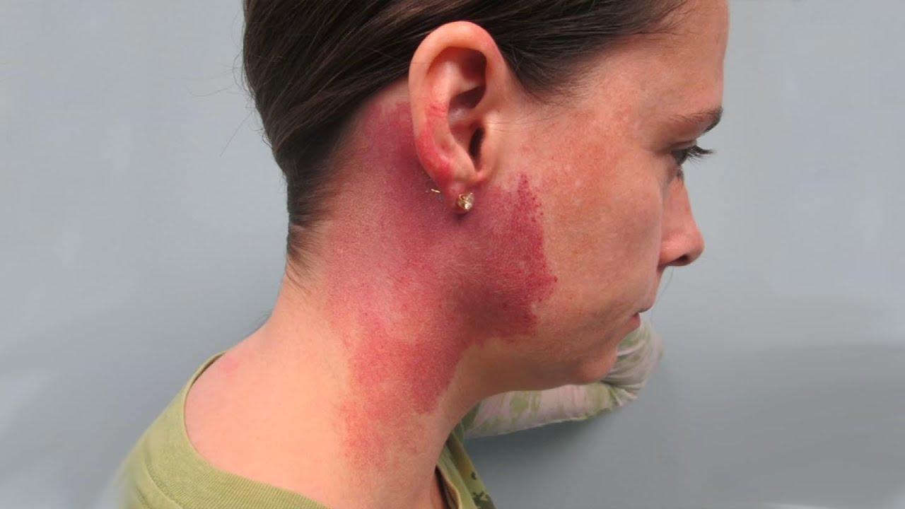 Of facial birthmarks