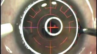 Britton's PRK Laser Eye Surgery
