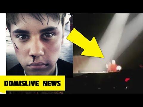 Mirá la caída que sufrió Justin Bieber en pleno show