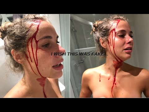 CRACKED MY HEAD OPEN *MUST WATCH*  like literally... I wish this was clickbait | Sara Farré
