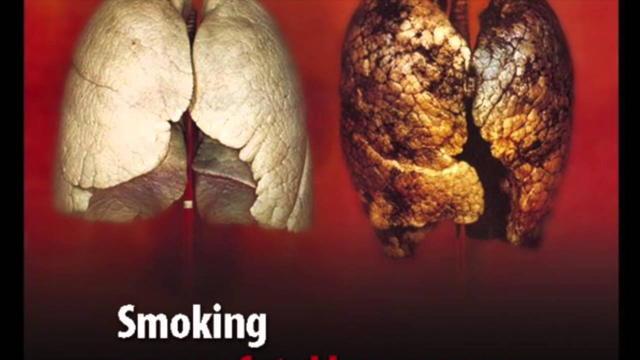 i smoking bad Action on smoking and health (ash) is a campaigning public health charity that works to eliminate the harm caused by tobacco.