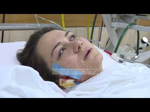 Open/ Policja e plagosur tregon tmerrin  - Top Channel Albania - News - Lajme