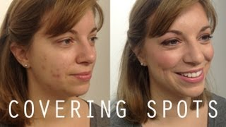 Back to Basics: How to Cover Spots Thumbnail
