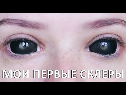 Как называется линза на весь глаз