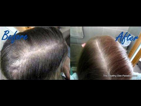 regrow hair with no sugar diet