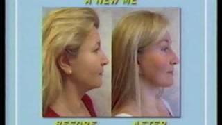 Custom PRK Surgery – Washington DC