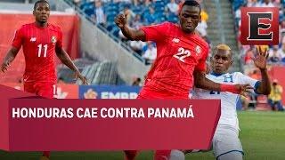 CONCACAF:  Resultados