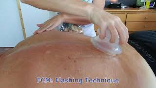 FCM Flashing Technique