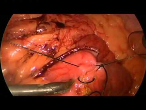 V095 A LAPAROSCOPIC ROUX-EN-Y AFTER A HEPATICOJEJUNOSTOMY ...