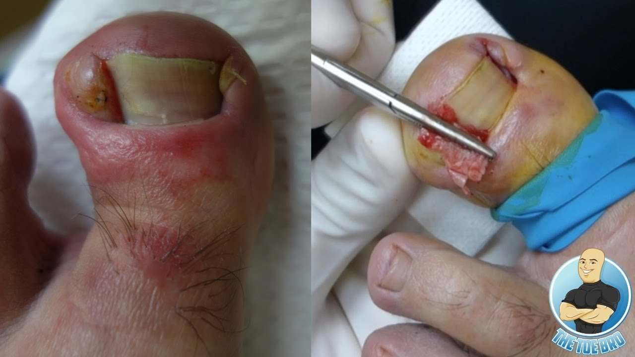 INFECTED INGROWN TOENAIL REMOVAL OF DEFORMED TOE!!! - YouTube