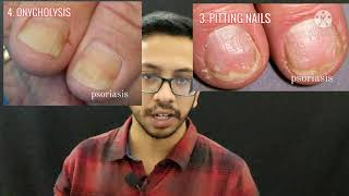 NAIL ABNORMALITIES CLINICAL CLUBBING KOILONYCHIA MEES LINES PITTING ONYCHOLYSIS