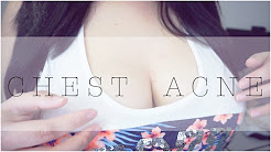 hqdefault - What Causes Pimples Between Your Breast