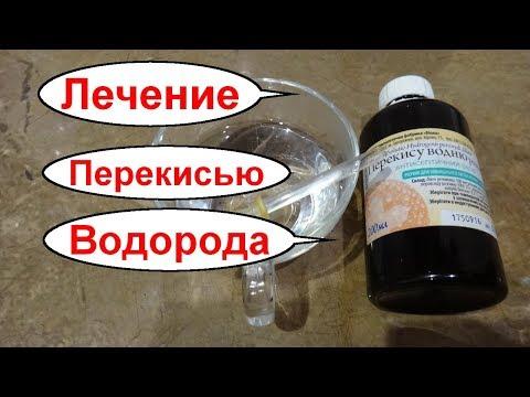 Лечение гастрита и язвы желудка перекисью водорода. Как принимать перекись водорода внутрь