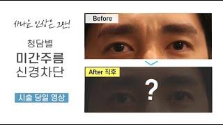 미간주름고민? 미간신경차단술로 반영구효과를!