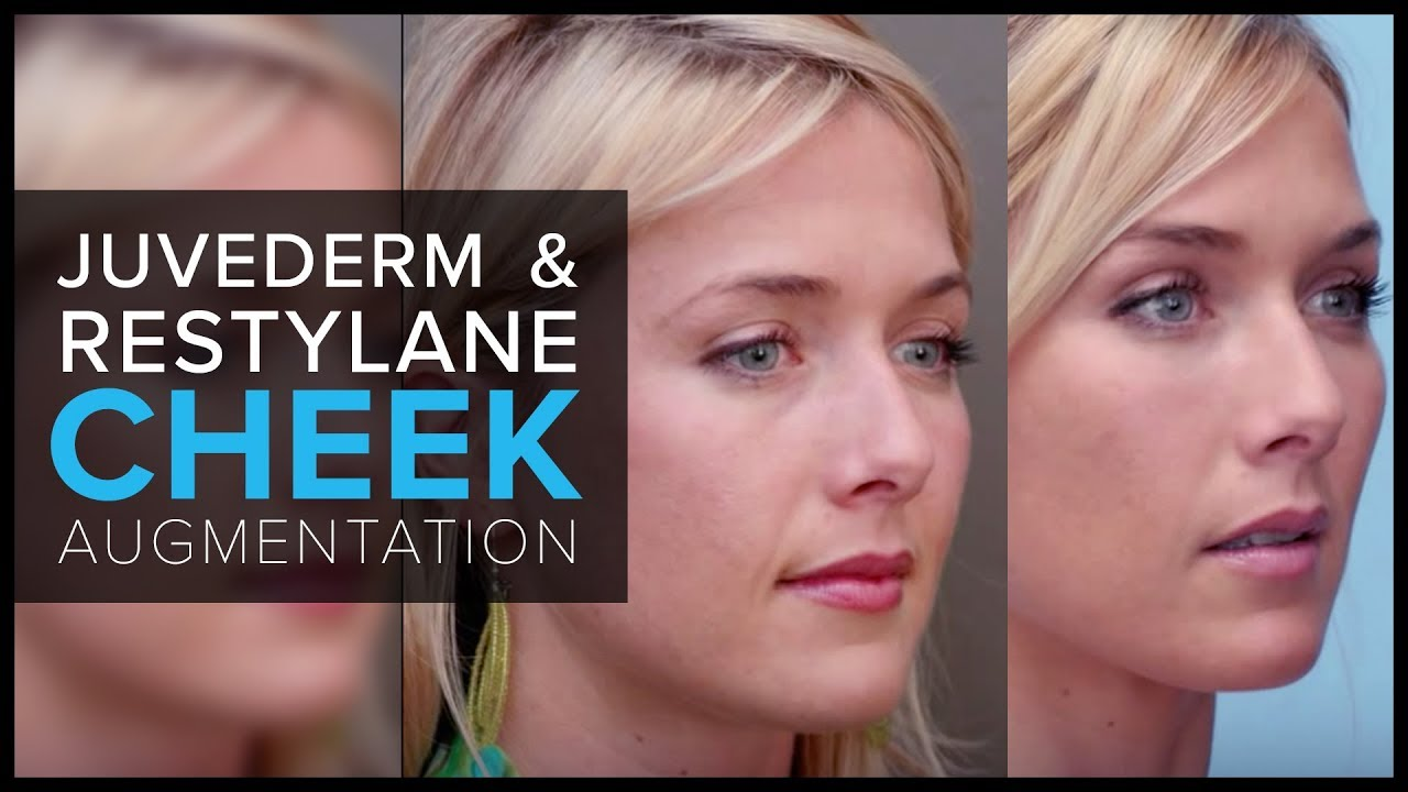 Cheek Augmentation with Juvederm and Restylane in San Francisco