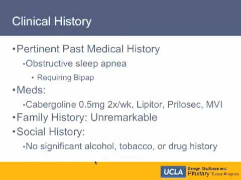Missed Acromegaly - Clinical History   UCLA Pituitary Tumor Program