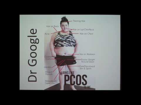 Polycystic ovary syndrome | Health Navigator NZ
