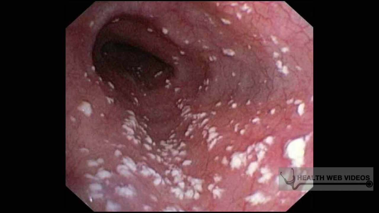 What are the causes of thrush (candidiasis) in women?