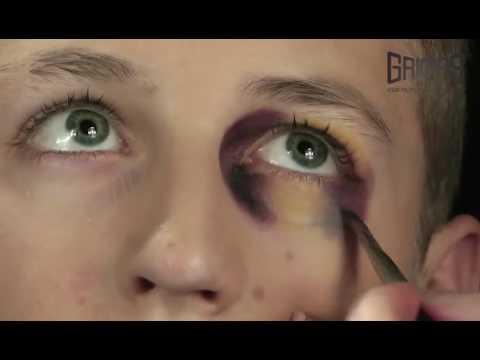Como quitar un moreton del ojo en un dia
