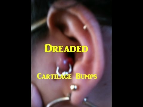 How To Get Rid Of Cartilage Piercing Bumps Youtube
