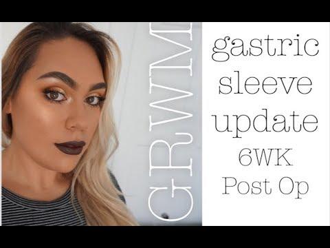 Grwm Gastric Sleeve Update 6 Wks Post Op Youtube