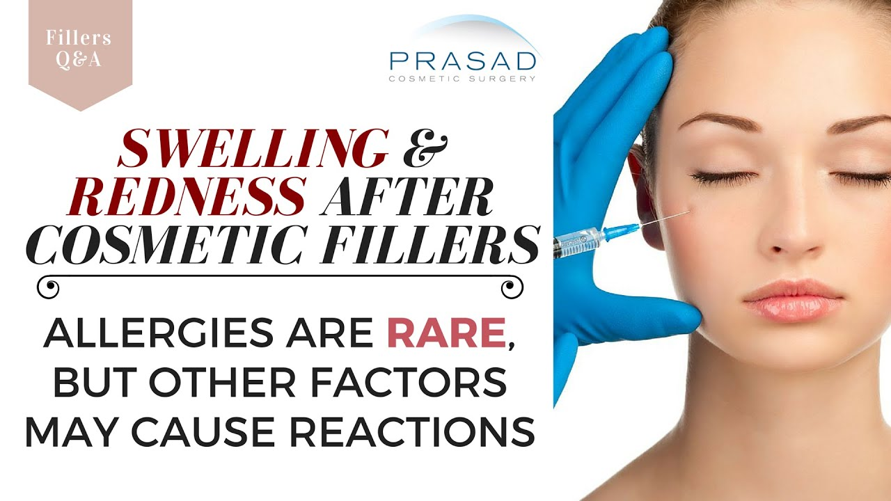 Allergies to Hyaluronic Acid Fillers are Rare, but Other