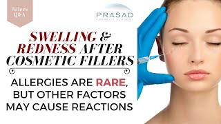 Allergies to Hyaluronic Acid Fillers are Rare, but Other Factors Can Cause Swelling and Redness