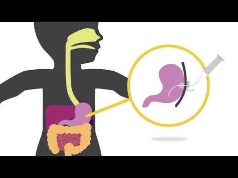 Understanding Feeding Tubes: Children's Hospital Of Wisconsin