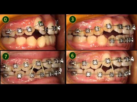Treatment Of A Crowded Case Without Extraction Before And After Alfalah Dental Lab Supply