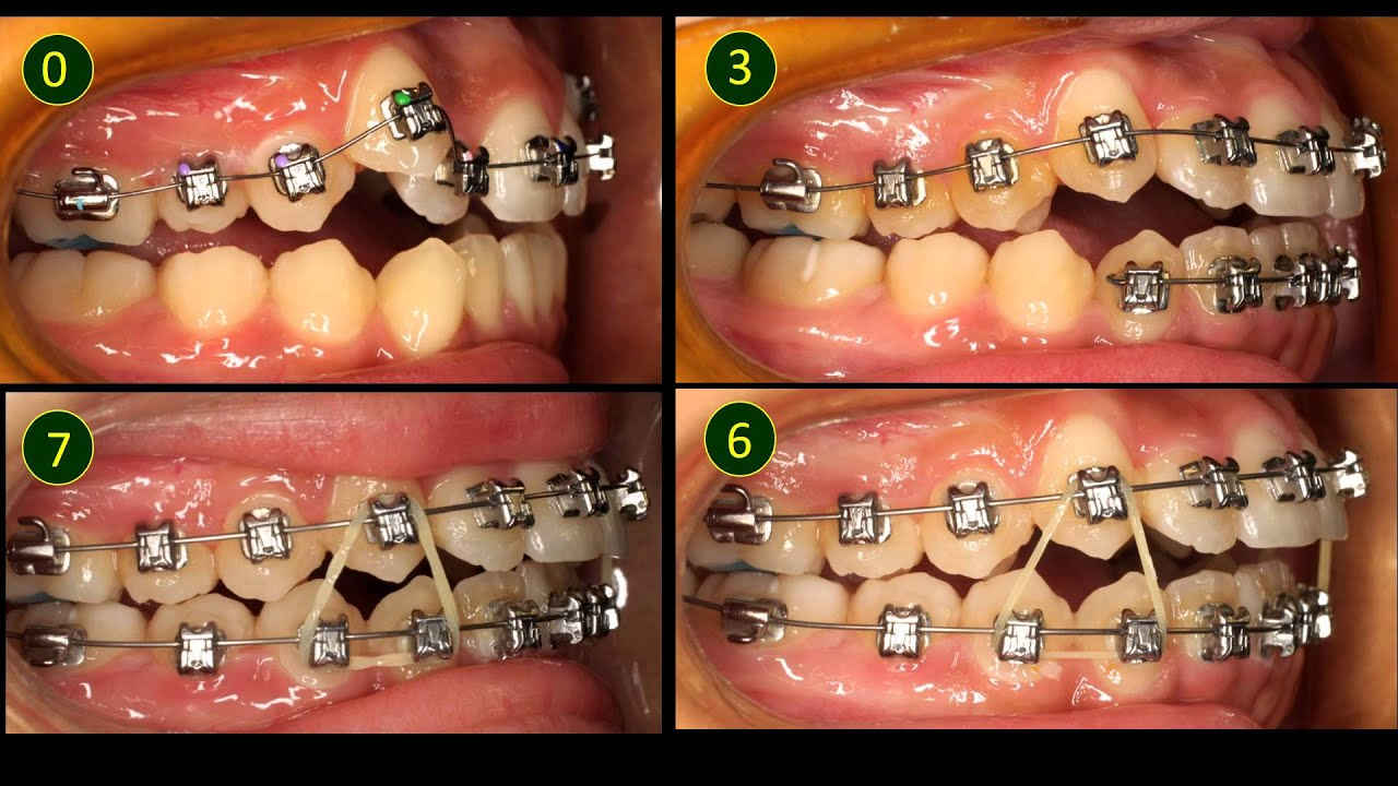 Treatment Of A Crowded Case Without Extraction Dr Loh Kai Woh Youtube