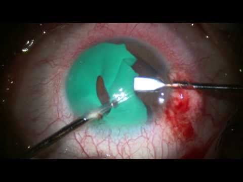 Change Your Eye Color. Blue Eyes. Removal of Cosmetic Iris. Stephen Slade MD