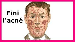 Se débarrasser de l'acné définitivement