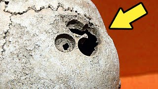 Археологам удалось узнать с какими проблемами сталкивались древние люди